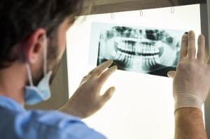 Lekarz trzymajacy rentgen zęba