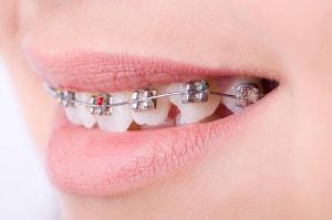 Kobieta z rodzajem aparatu na zęby