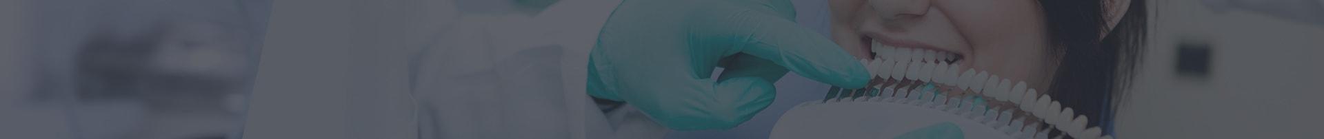 Banner wybielanie zębów