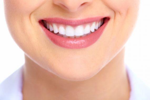 bonding zębów uśmiech kobiety