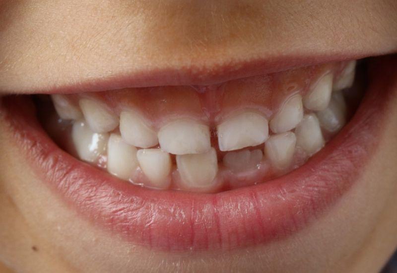 uśmiech dziecka zdrowe zęby