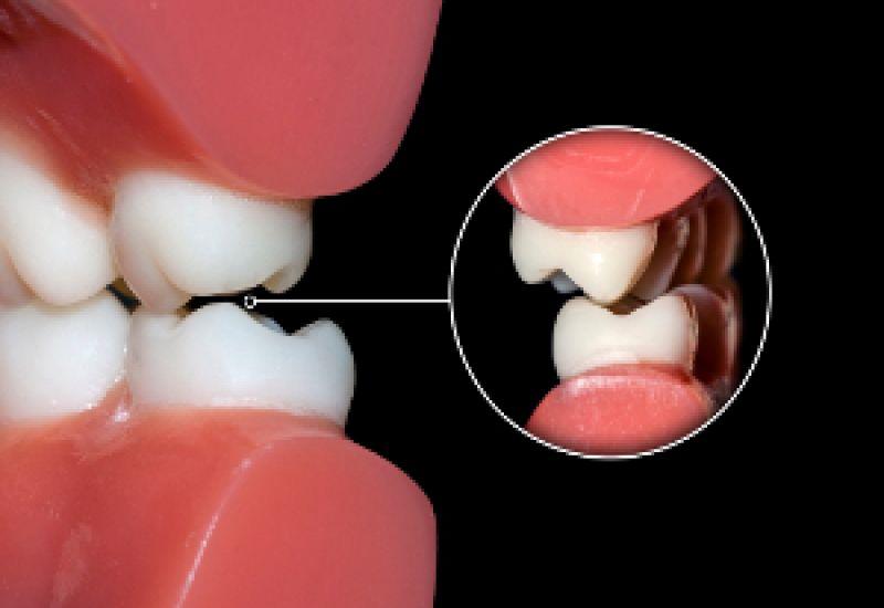 okluzja stomatologia zęby