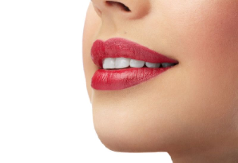 leczenie zębów przed ślubem białe zęby