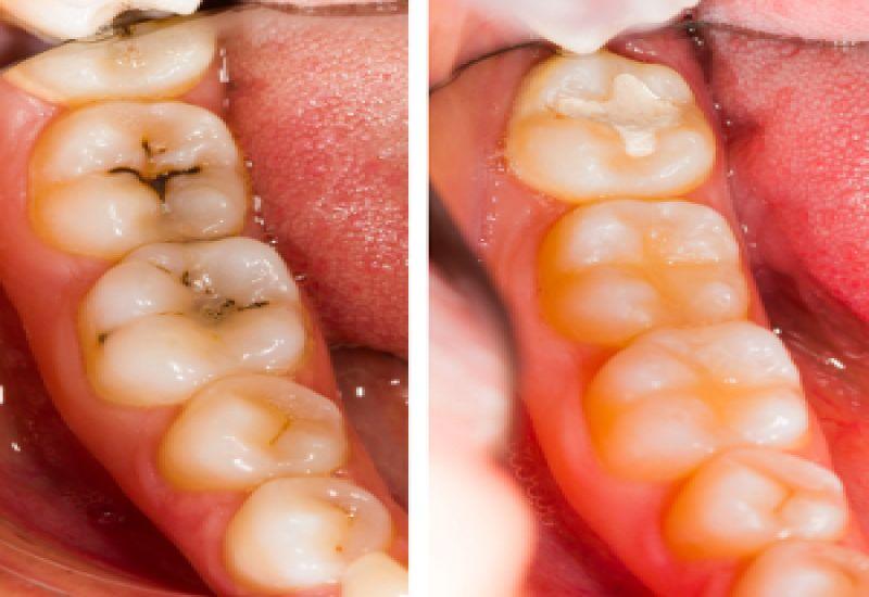 próchnica przed i po leczeniu