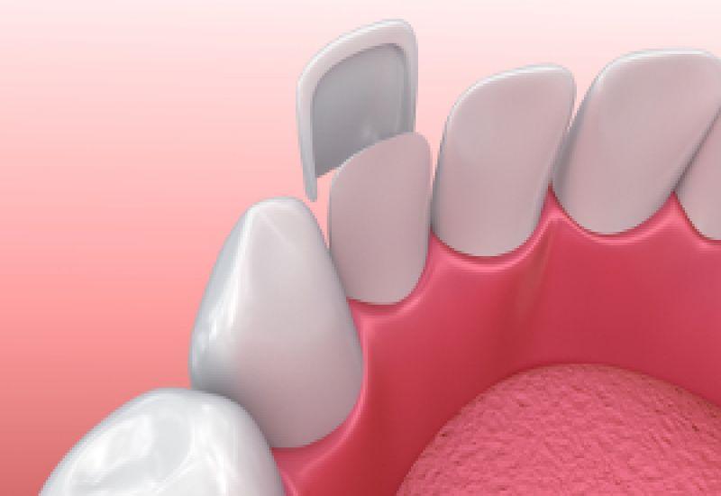 licówki dentystyczne