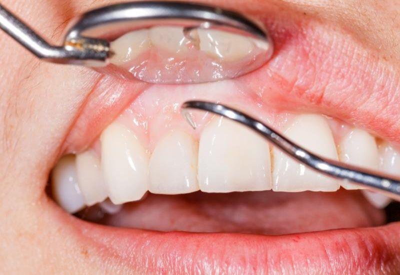 przegląd stomatologiczny