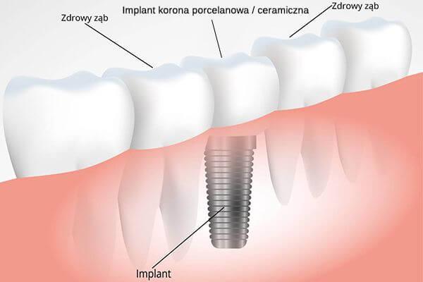 Wykres przedstawiający implant zębów