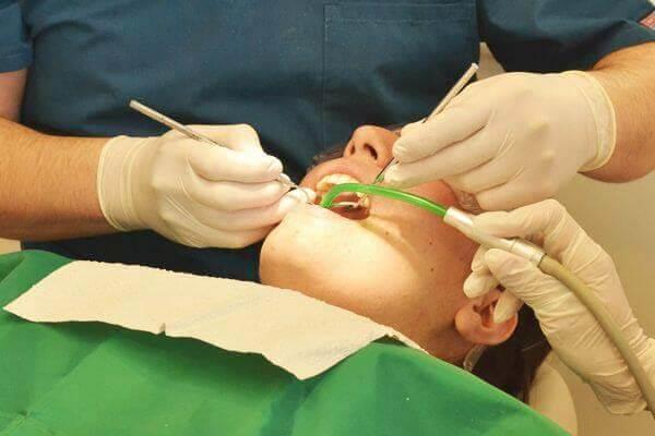 plombowanie zęba
